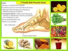 Gout prevention
